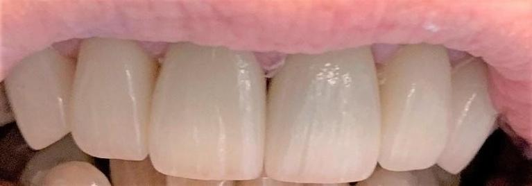 Tooth-Replacement-and-Cosmetic-Treatment-After-Image