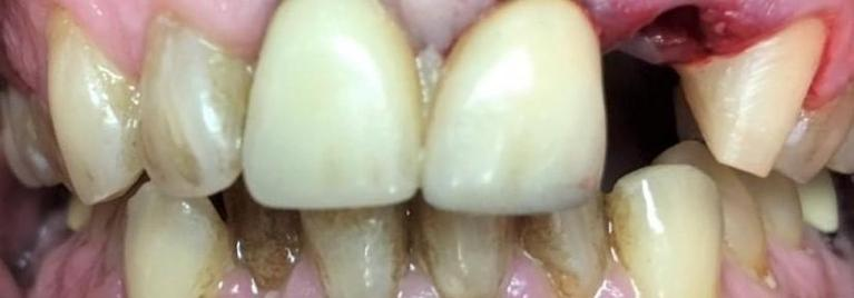 Tooth-Replacement-and-Cosmetic-Treatment-Before-Image